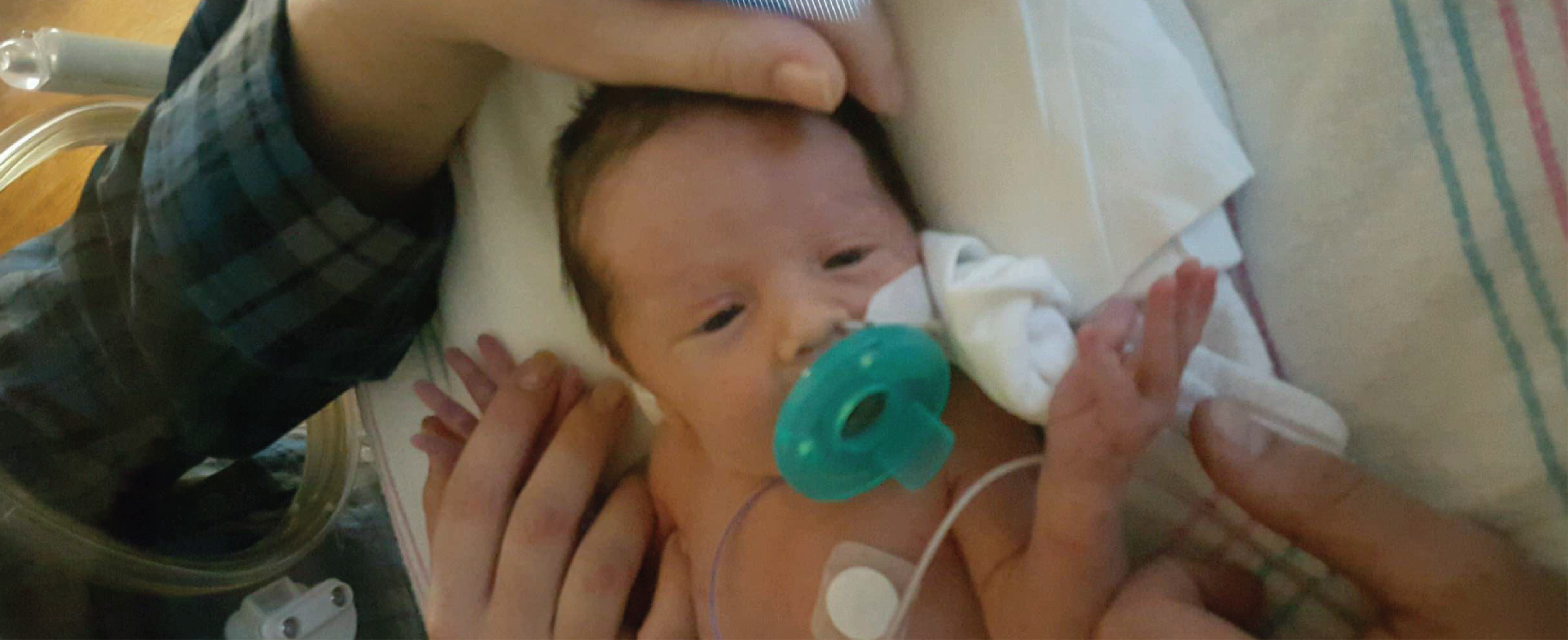 Baby in hospital with wires attached to chest and sucking on pacifier and with an adult arm above her